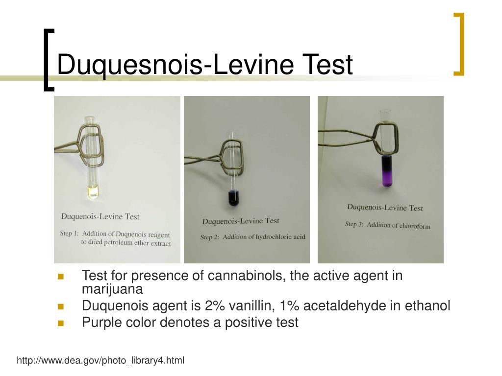 Duquesnois-Levine Test