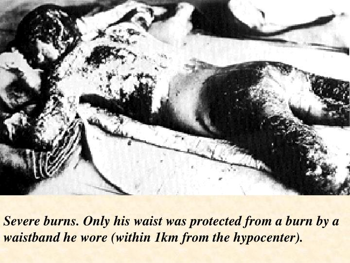 Severe burns. Only his waist was protected from a burn by a waistband he wore (within 1km from the hypocenter).