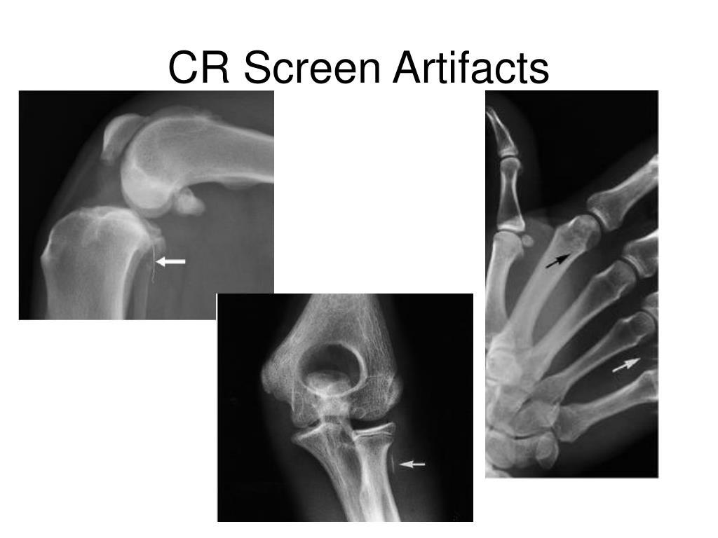 CR Screen Artifacts