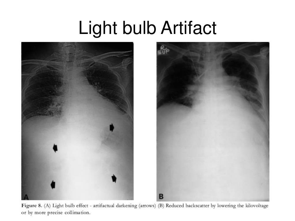 Light bulb Artifact