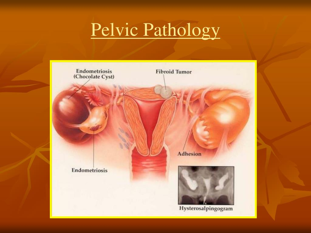 Pelvic Pathology
