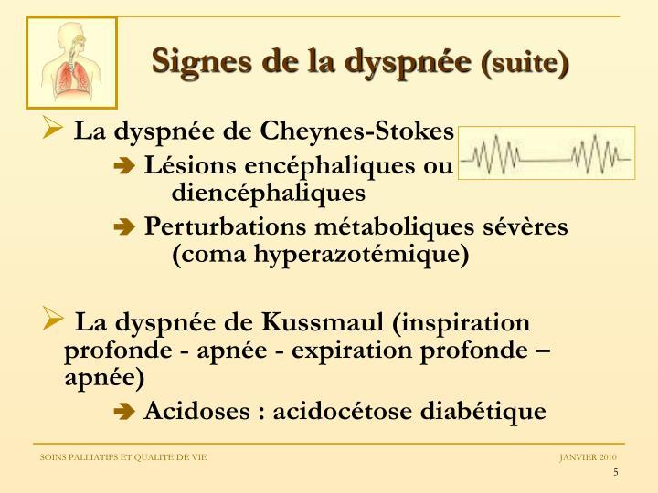 Signes de la dyspnée