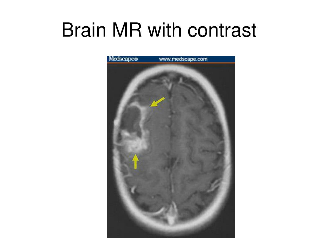 Brain MR with contrast