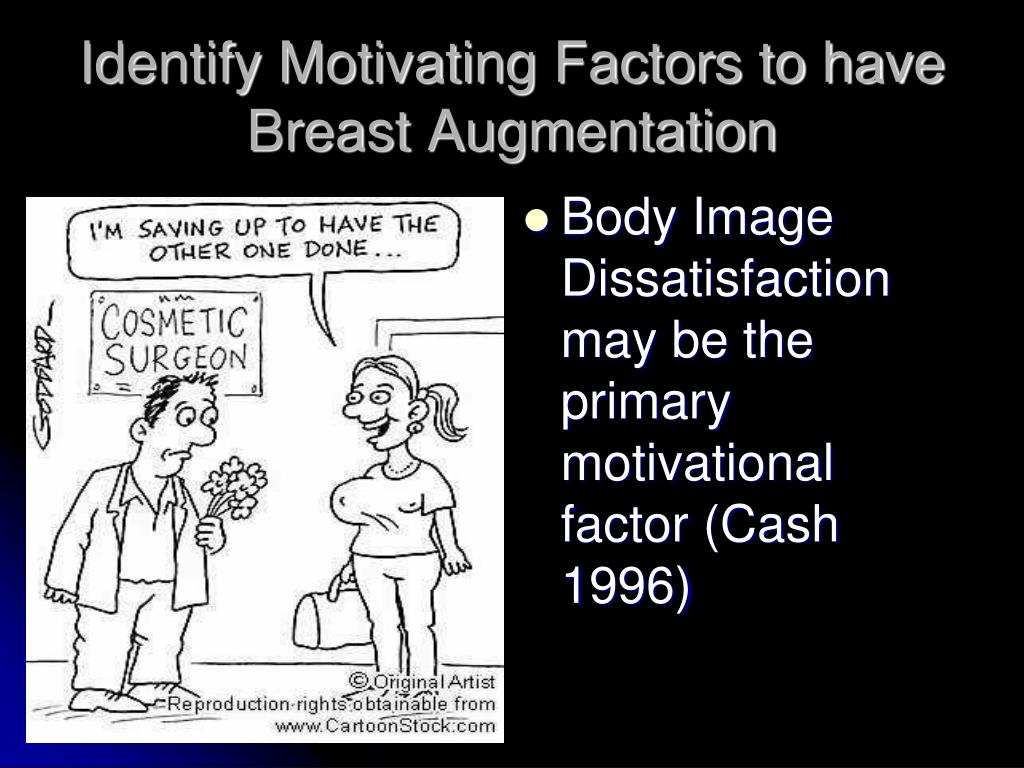 Identify Motivating Factors to have Breast Augmentation