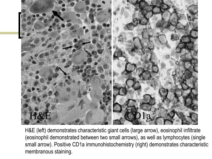 H&E (left) demonstrates characteristic giant cells (large arrow), eosinophil infiltrate (eosinophil demonstrated between two small arrows), as well as lymphocytes (single small arrow). Positive CD1a immunohistochemistry (right) demonstrates characteristic membranous staining.