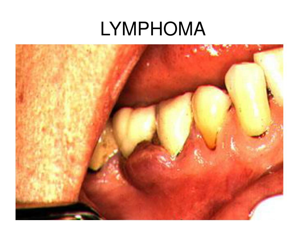 LYMPHOMA