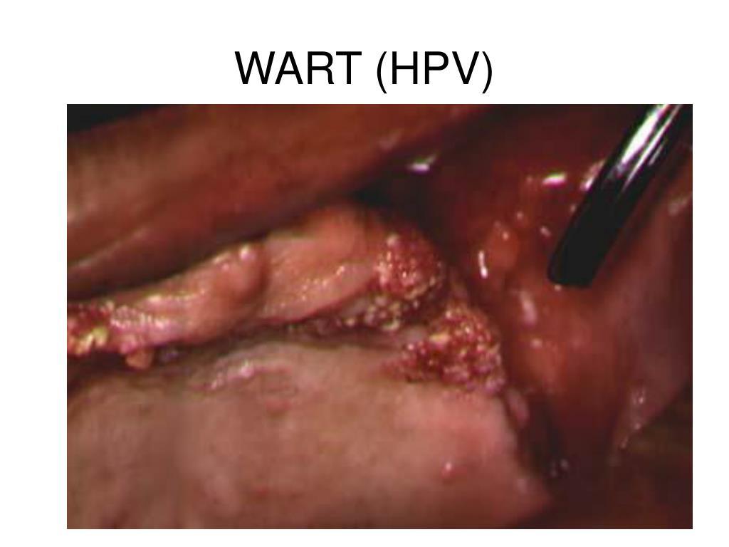 WART (HPV)