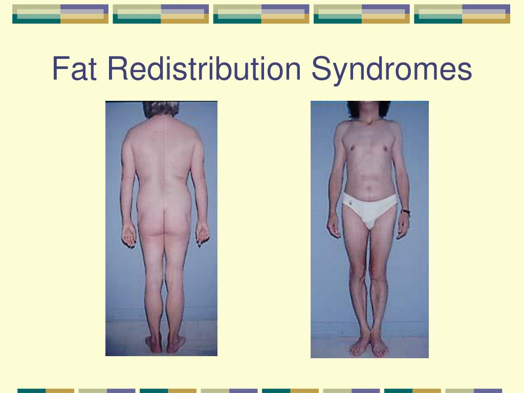 Fat Redistribution Syndromes