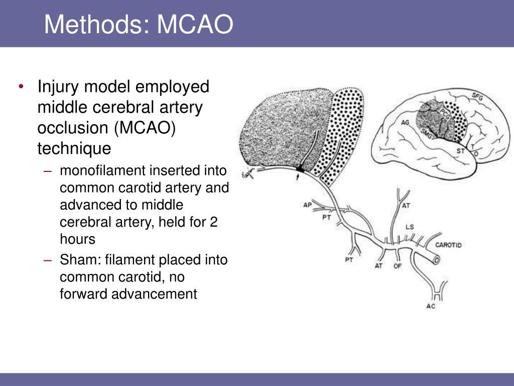 Methods: MCAO