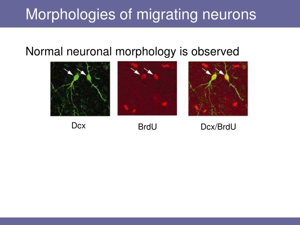 Morphologies of migrating neurons