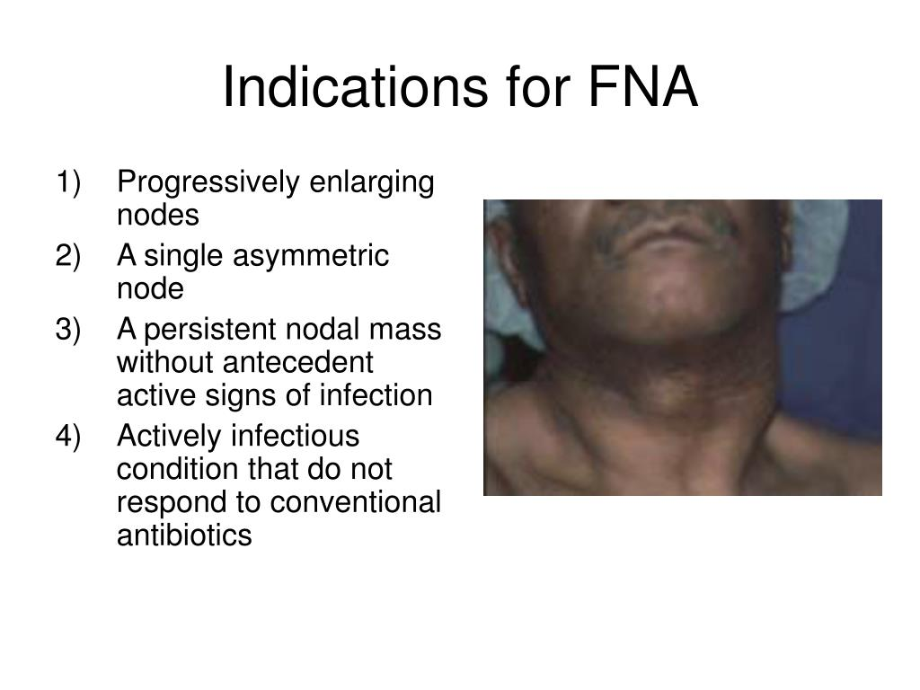Indications for FNA