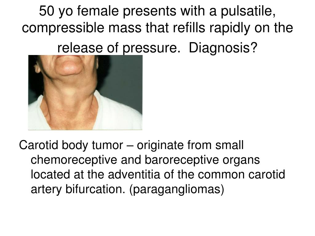 50 yo female presents with a pulsatile, compressible mass that refills rapidly on the release of pressure.  Diagnosis?