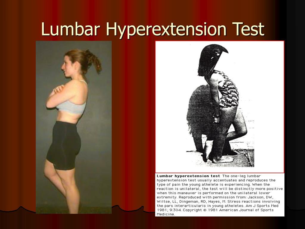 Lumbar Hyperextension Test