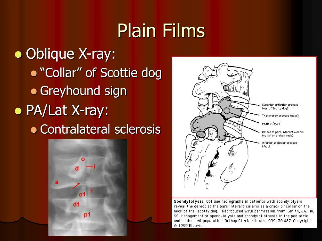 Plain Films