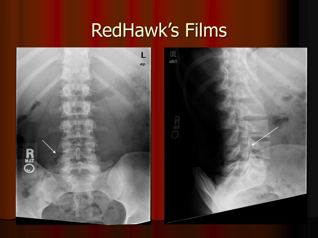 RedHawk's Films