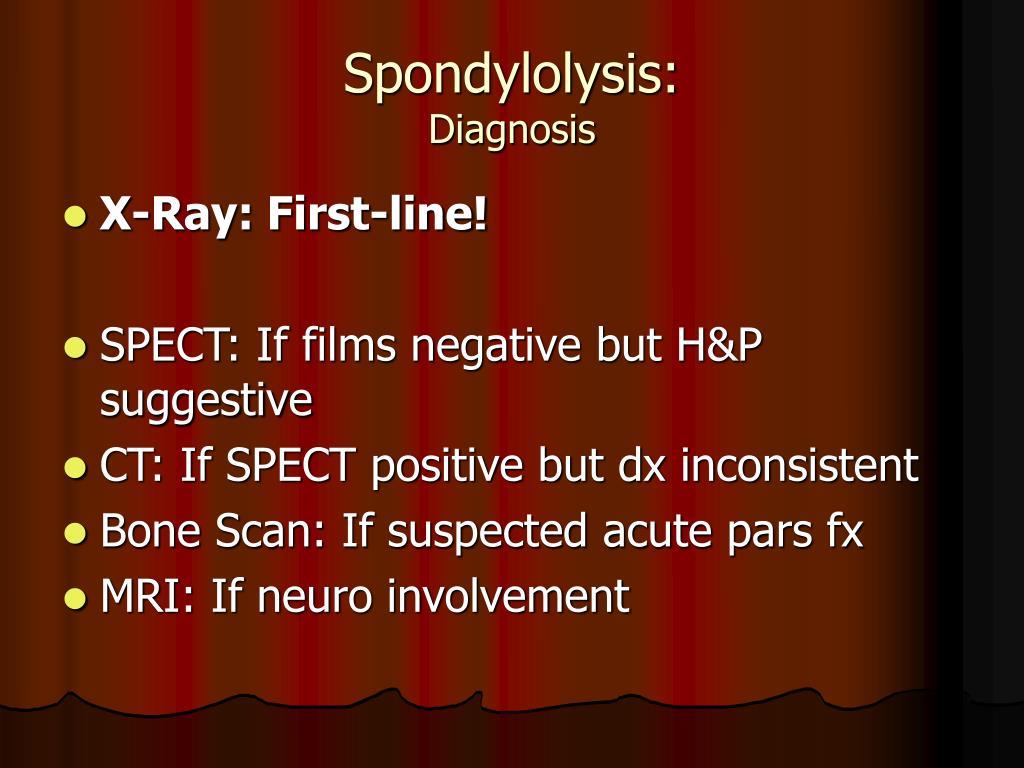 Spondylolysis: