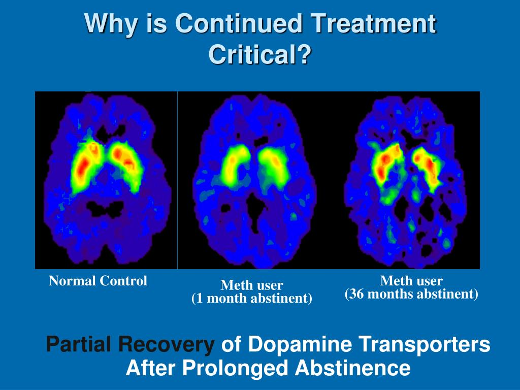 Why is Continued Treatment Critical?