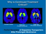 why is continued treatment critical