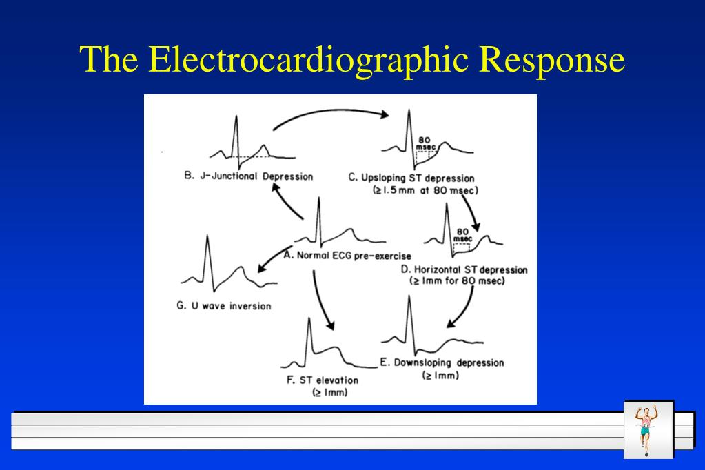The Electrocardiographic Response