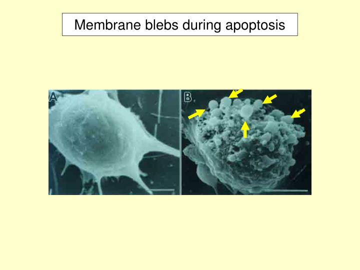 Membrane blebs during apoptosis