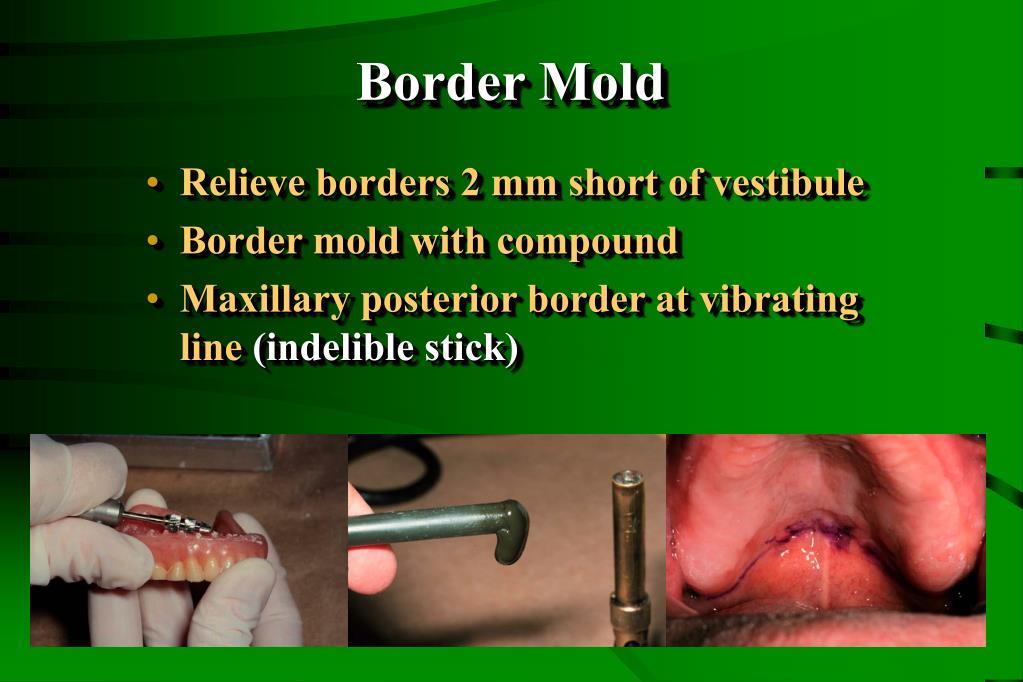 Border Mold