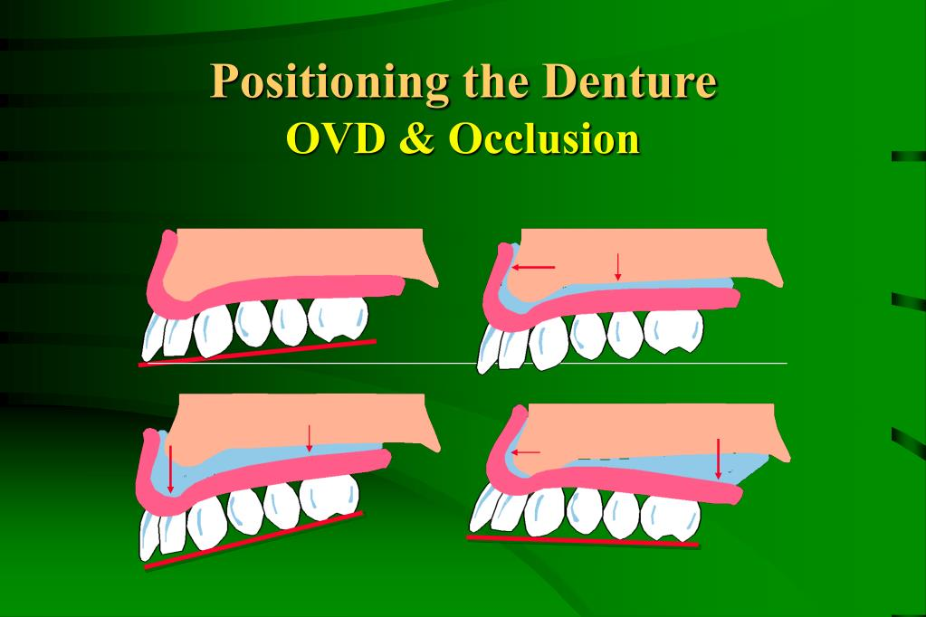 Positioning the Denture