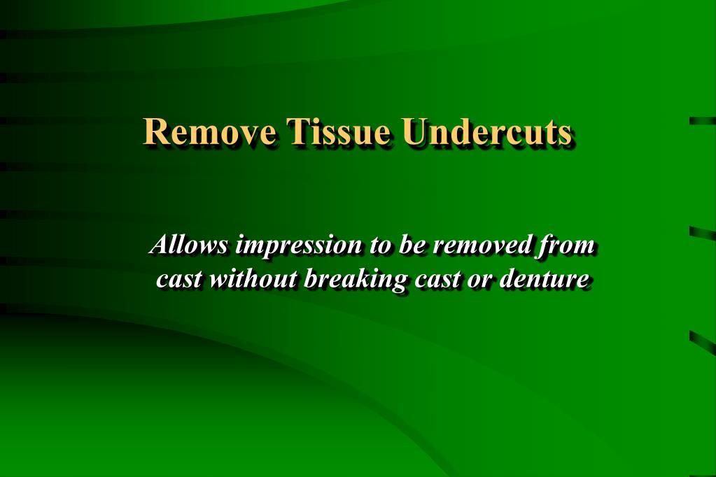 Remove Tissue Undercuts