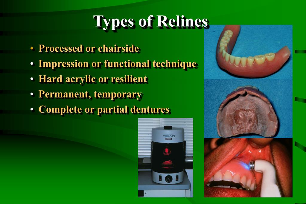 Types of Relines