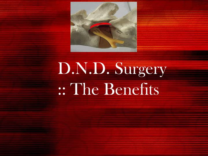 D n d surgery the benefits l.jpg