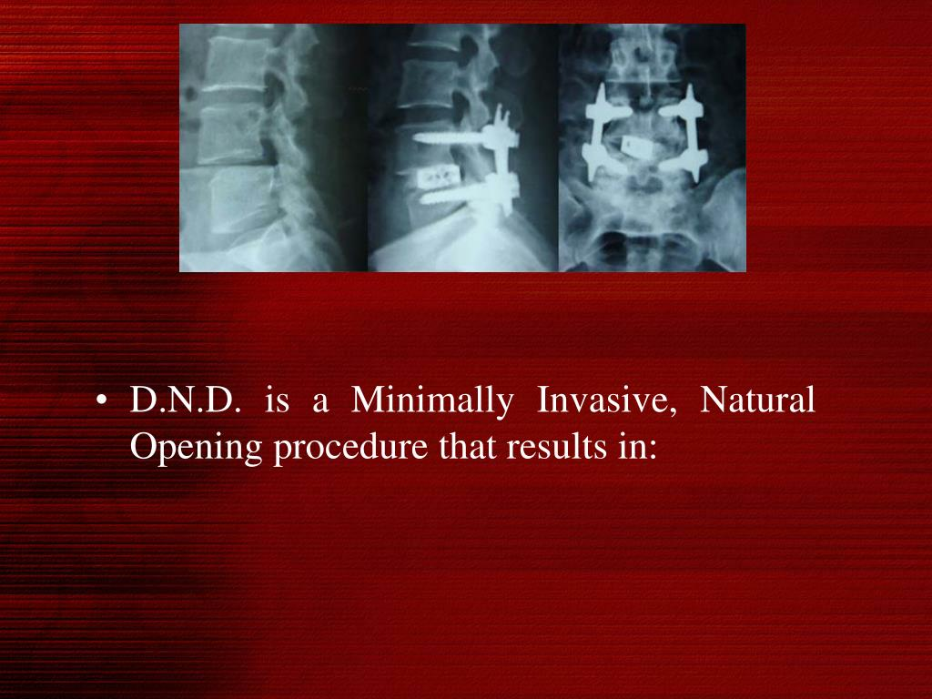 D.N.D. is a Minimally Invasive, Natural Opening procedure that results in: