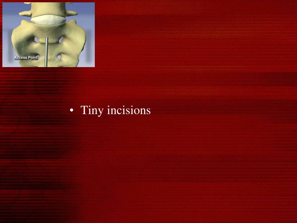 Tiny incisions