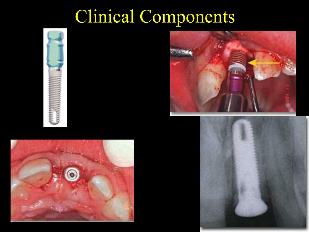Clinical Components