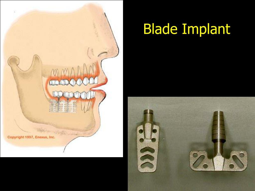 Blade Implant