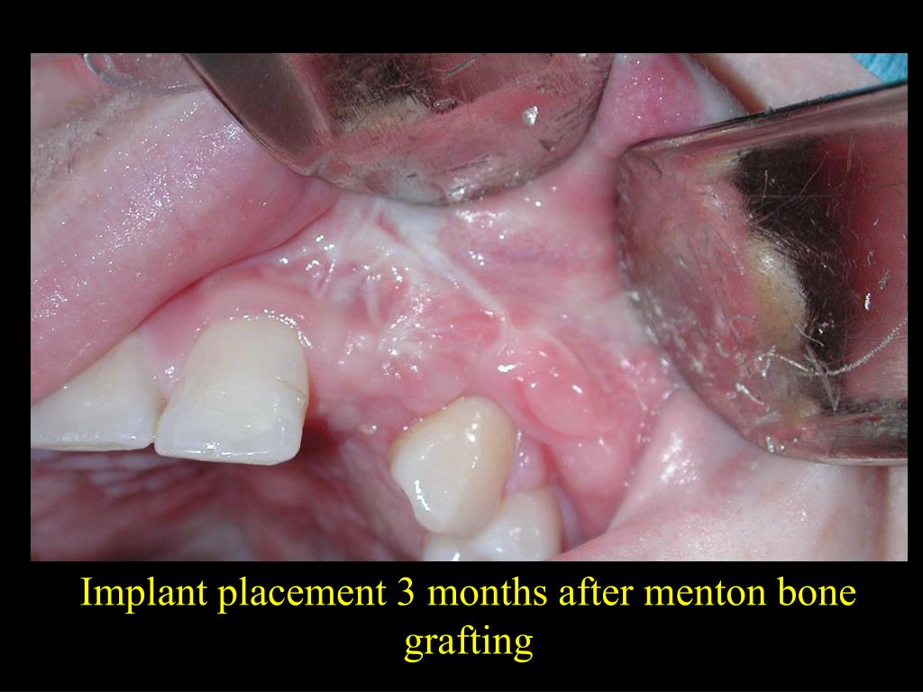 Implant placement 3 months after menton bone grafting