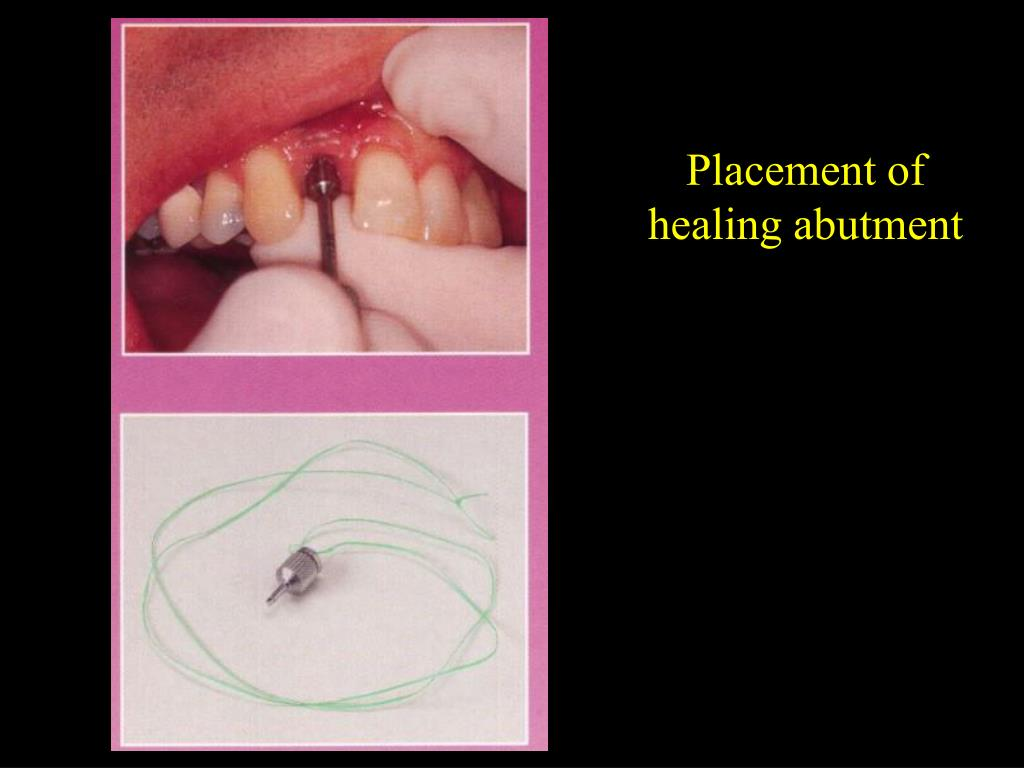 Placement of healing abutment