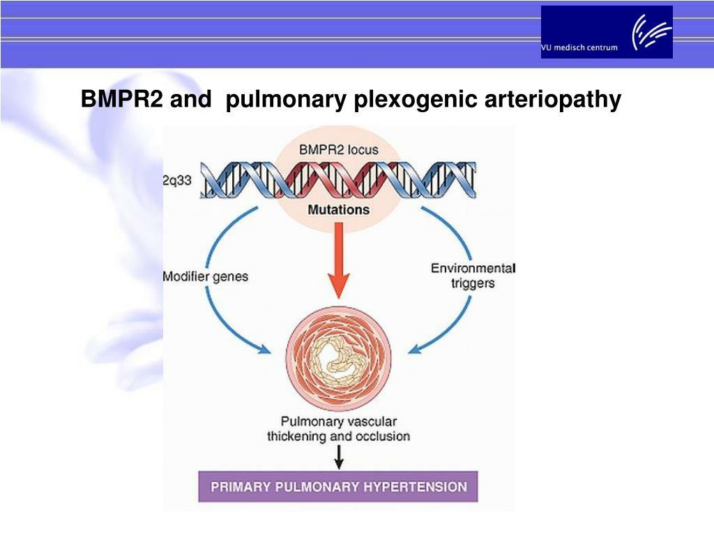 BMPR2 and  pulmonary plexogenic arteriopathy