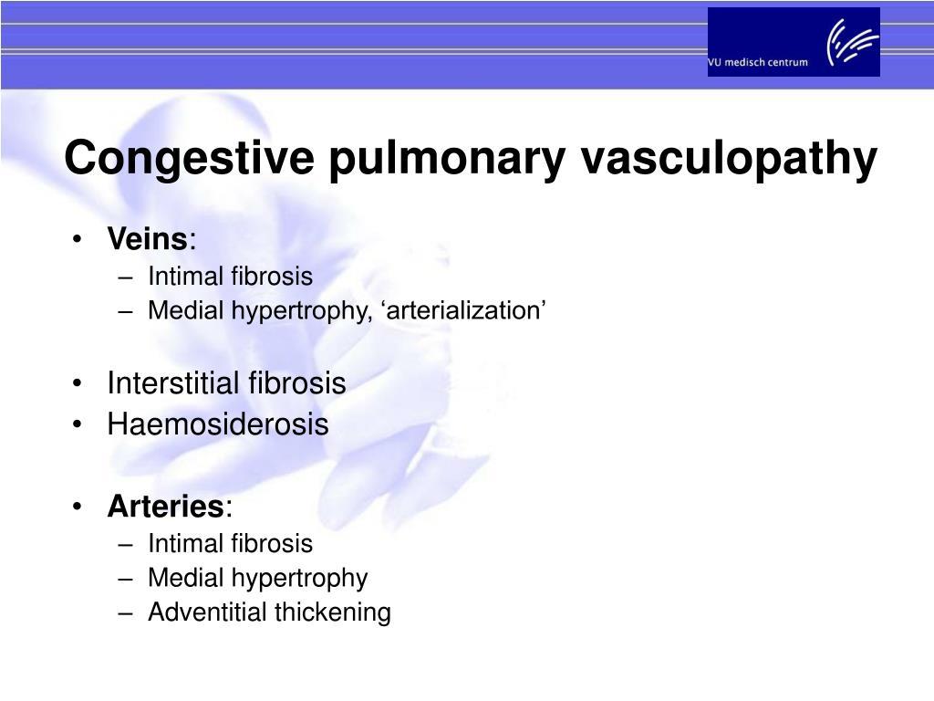 Congestive pulmonary vasculopathy
