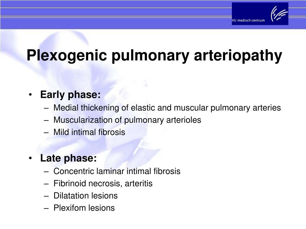 Plexogenic pulmonary arteriopathy