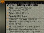 atrial tachycardias