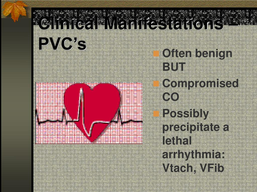 Clinical Manifestations – PVC's