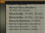 sinus rhythms