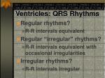 ventricles qrs rhythms