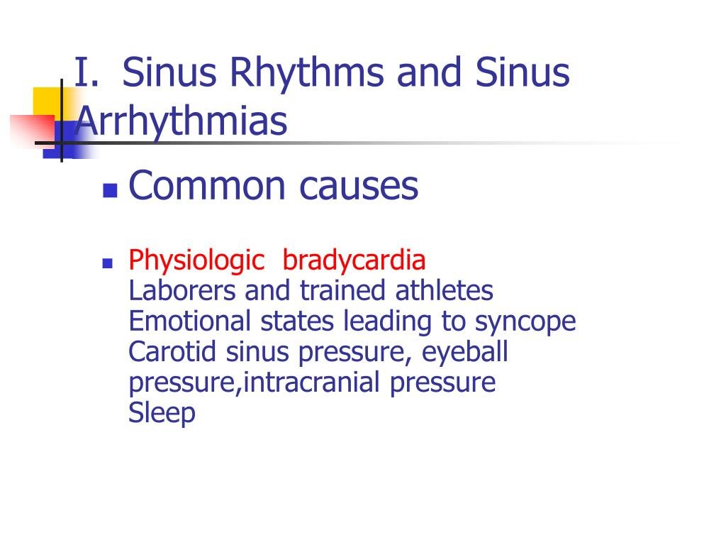 Sinus Rhythms and Sinus