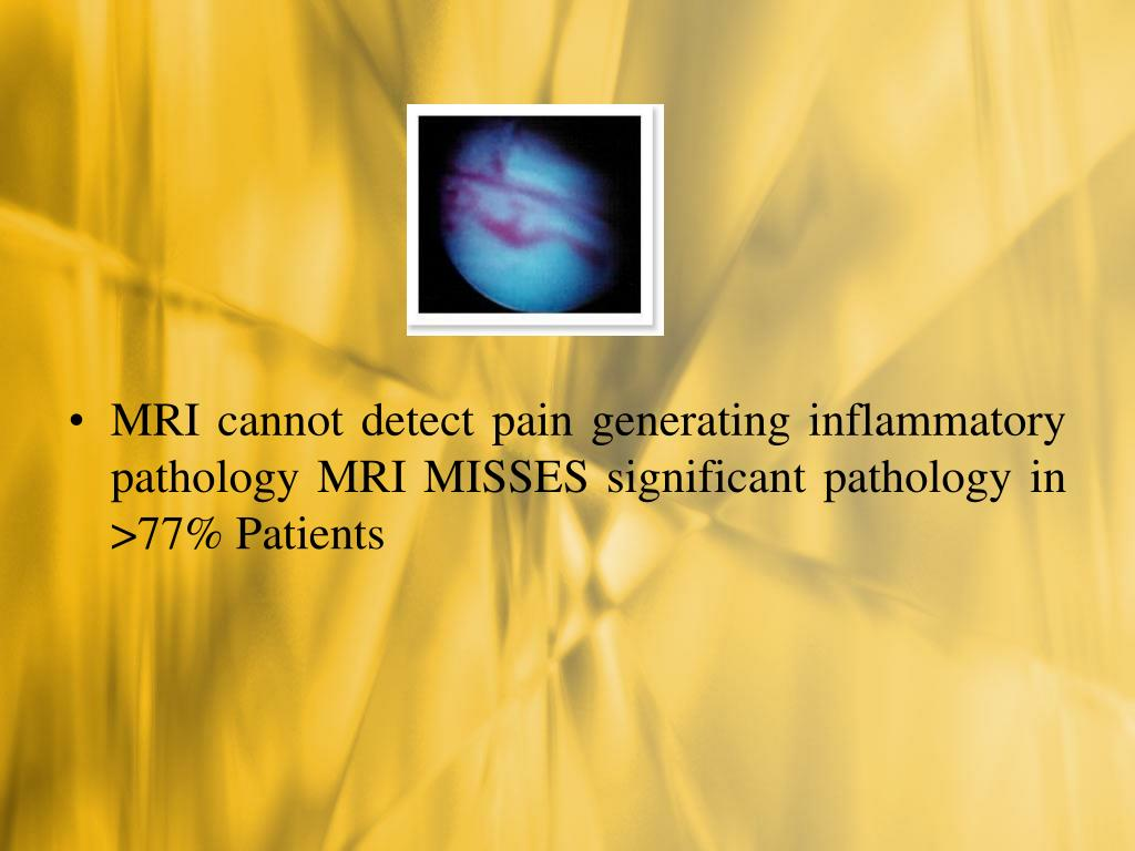 MRI cannot detect pain generating inflammatory pathology MRI MISSES significant pathology in >77% Patients