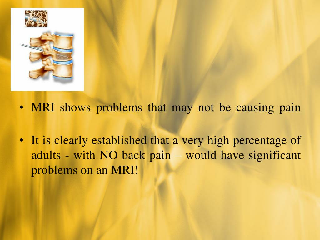 MRI shows problems that may not be causing pain