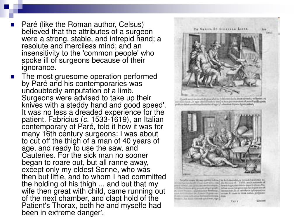 Paré (like the Roman author, Celsus) believed that the attributes of a surgeon were a strong, stable, and intrepid hand; a resolute and merciless mind; and an insensitivity to the 'common people' who spoke ill of surgeons because of their ignorance.
