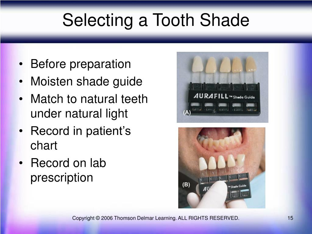 Selecting a Tooth Shade