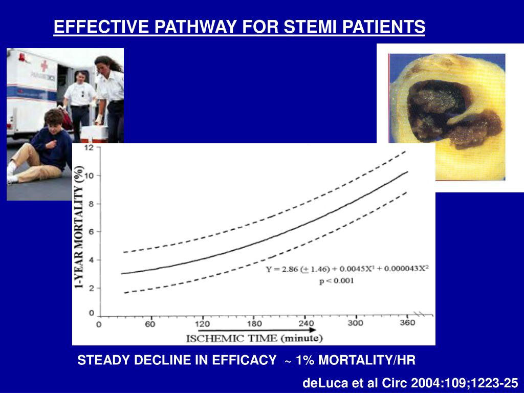 EFFECTIVE PATHWAY FOR STEMI PATIENTS