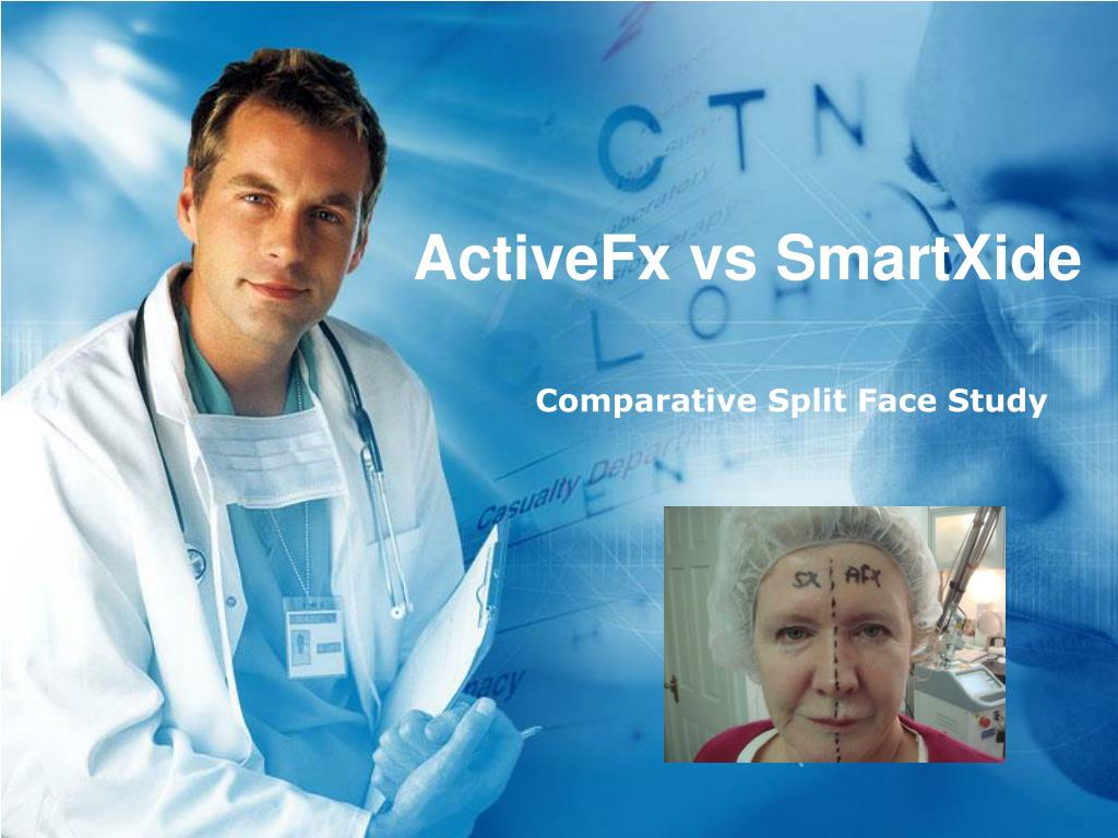 ActiveFx vs SmartXide