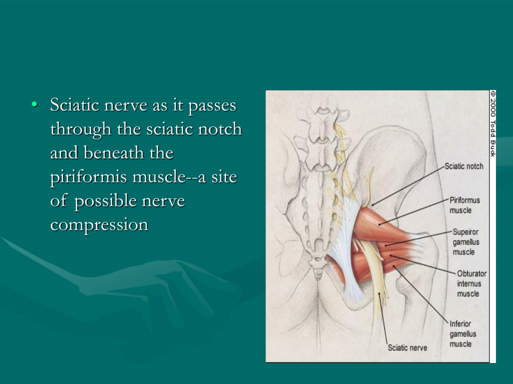 Sciatic nerve as it passes through the sciatic notch and beneath the piriformis muscle--a site of possible nerve compression